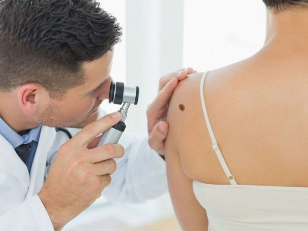 melanoma-screening