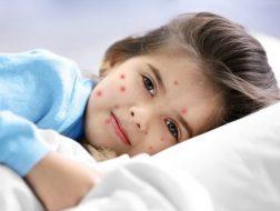 chickenpox in children