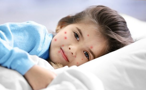 chickenpox in children
