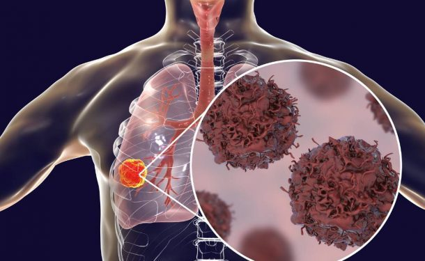 pulmonary-function-testing-for-lung-cancer-diagnosis