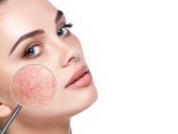 Rosacea and Seborrheic Dermatitis