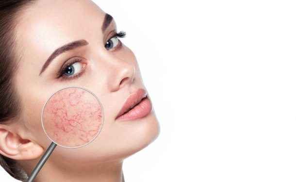 The Great Acne Mimickers – Rosacea and Seborrheic Dermatitis